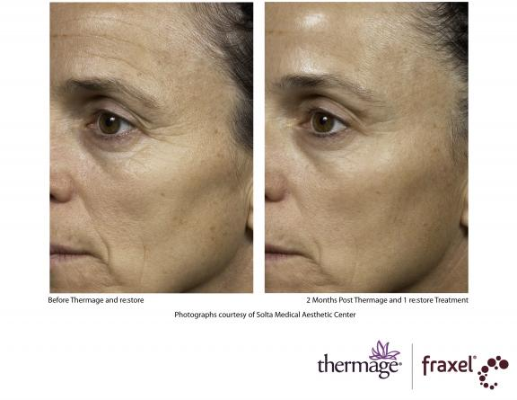 thermage before after. Photo: Before and After