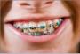 Health & Fitness in Schertz, TX: McGarrell Orthodontics