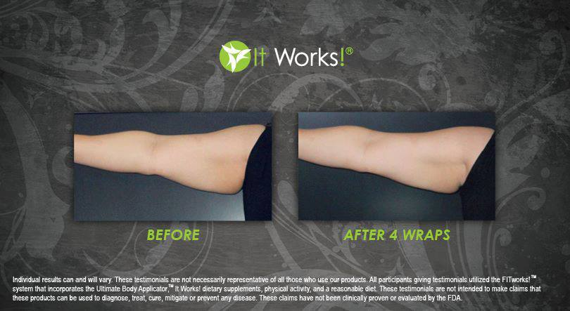 Arms%203%20-%20after%204%20wraps.full