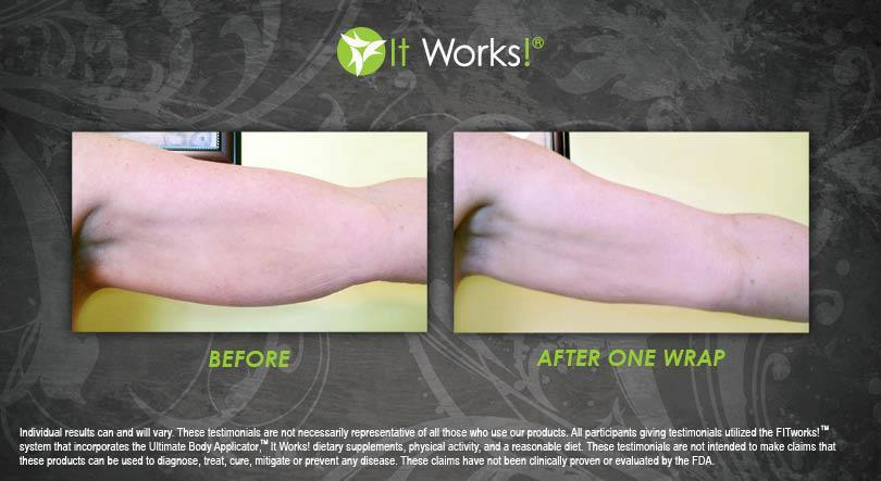 Arms - After 1 Wrap
