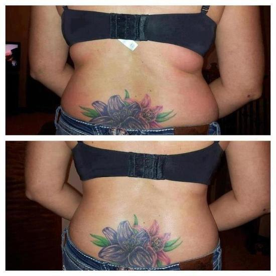 Before and After - Back Fat 2