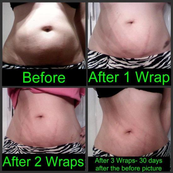 Before and After - Tummy - 30 Days and 3 Wraps