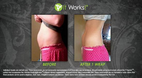 Tummy 35 - After 1 Wrap